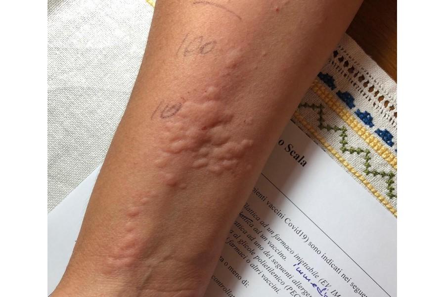 il test per l'allergia al vaccino Covid19. Chi deve farlo?