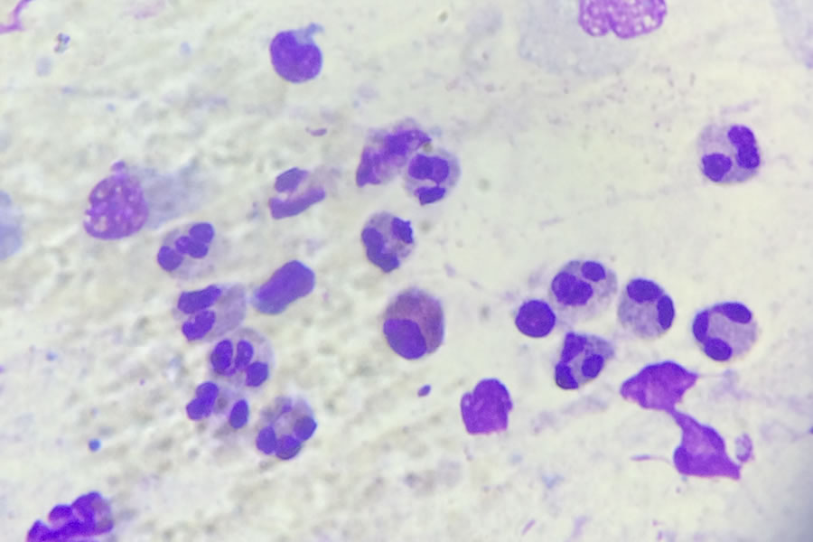 rinocitogramma neutrofili