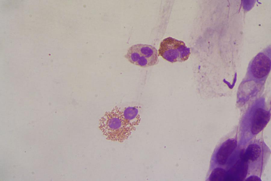 eosinofili