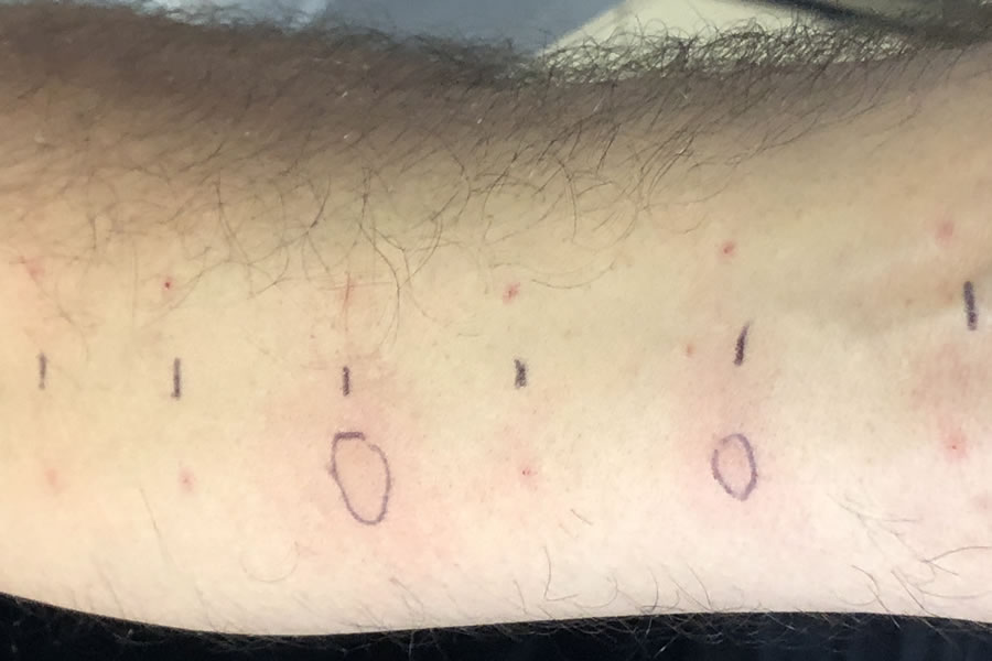 test positivo per allergia a vaccino COVID