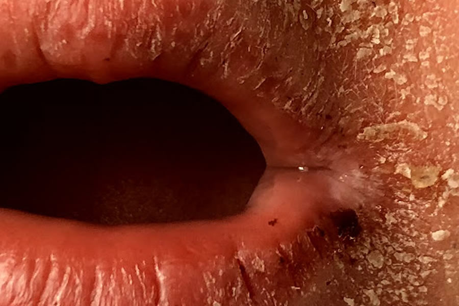 Dermatite atopica e orticaria